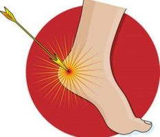 Are you having Heel Pain?