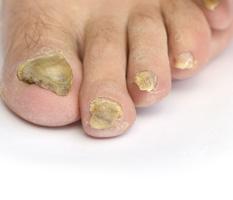 Ugly toe nails? How to get rid of Nail Fungus